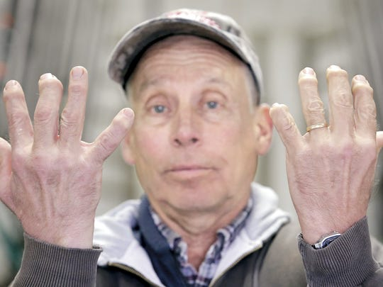 Farmer David Travis holds up his his arthritic hands at his farm in Sharon in southern Wisconsin.