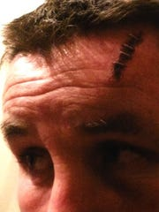 A photo of Anthony Moore's injuries after he was allegedly