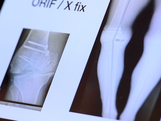 X-rays of Dalton Harben's knee before his last surgery