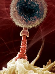 The immune cell at the top of the picture has a protein