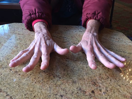 The hands of John Christopher Jones, who frequently plays piano at the Omni Hotel, Indianapolis, Wednesday, Nov. 18, 2015.