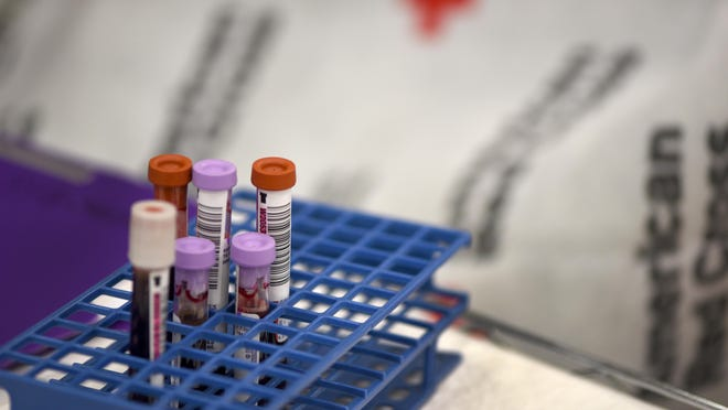 The American Red Cross is now testing all blood, platelet and plasma donations for COVID-19 antibodies.
