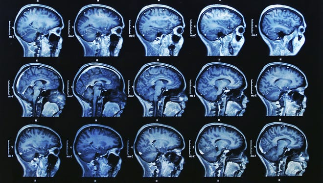 Huntington's disease is the result of amutation in the huntingtin gene.Mutated huntingtin genes create proteins that are longer than normal. These lengthy proteins accumulatein neurons, leading to quicker degeneration in the brain.