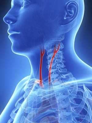 The carotid arteries are located under your jawbone on each side of your neck.