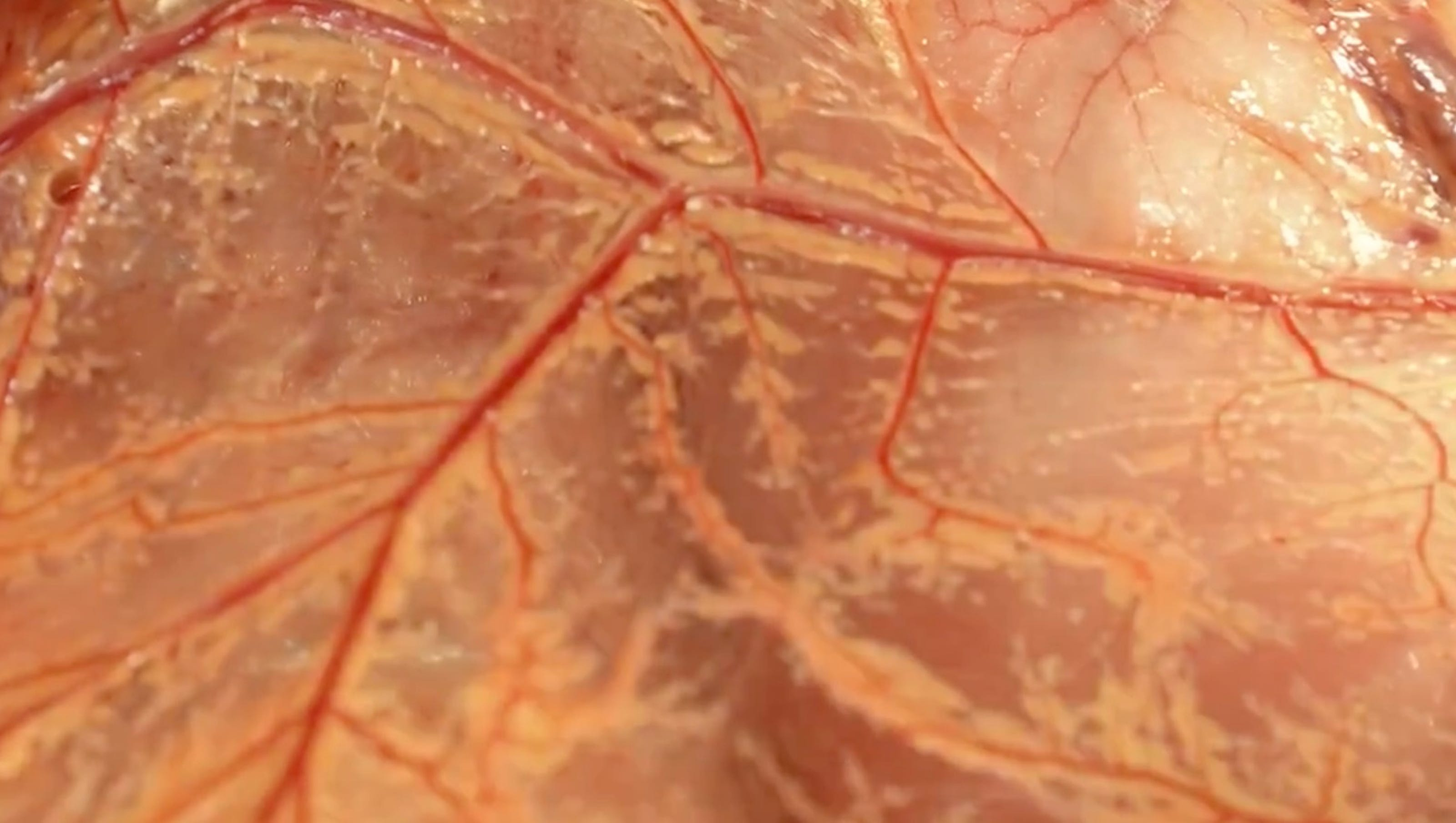 New Human Organ Discovered By Irish Surgeon
