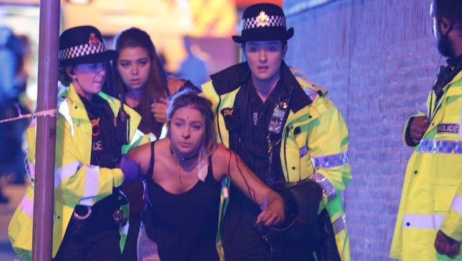 A young girl injured at the Ariana Grande concert on May 22, 2017, is helped by medics outside the Manchester Arena.