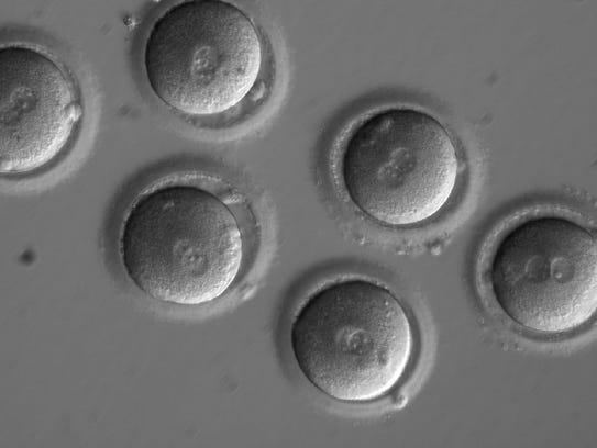US scientists fix disease genes in human embryos