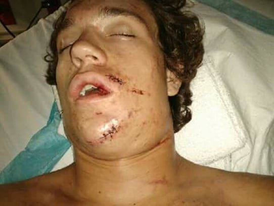 Tanner Mounce of North Fort Myers suffered a broken