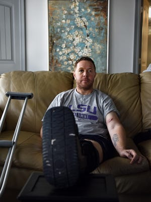 EF3 tornado survivor Martin Rich nurses his injuries sustained during the Jan. 21 tornado. When the tornado that ripped through the Pine Belt reached Rich, he was thrown from his destroyed home leaving him unconscious with a broken limb, puncture wound and peppered with cuts and bruises from flying debris.