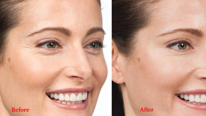 Botox is a popular cosmetic treatment for lines and wrinkles on the forehead and around the eyes.