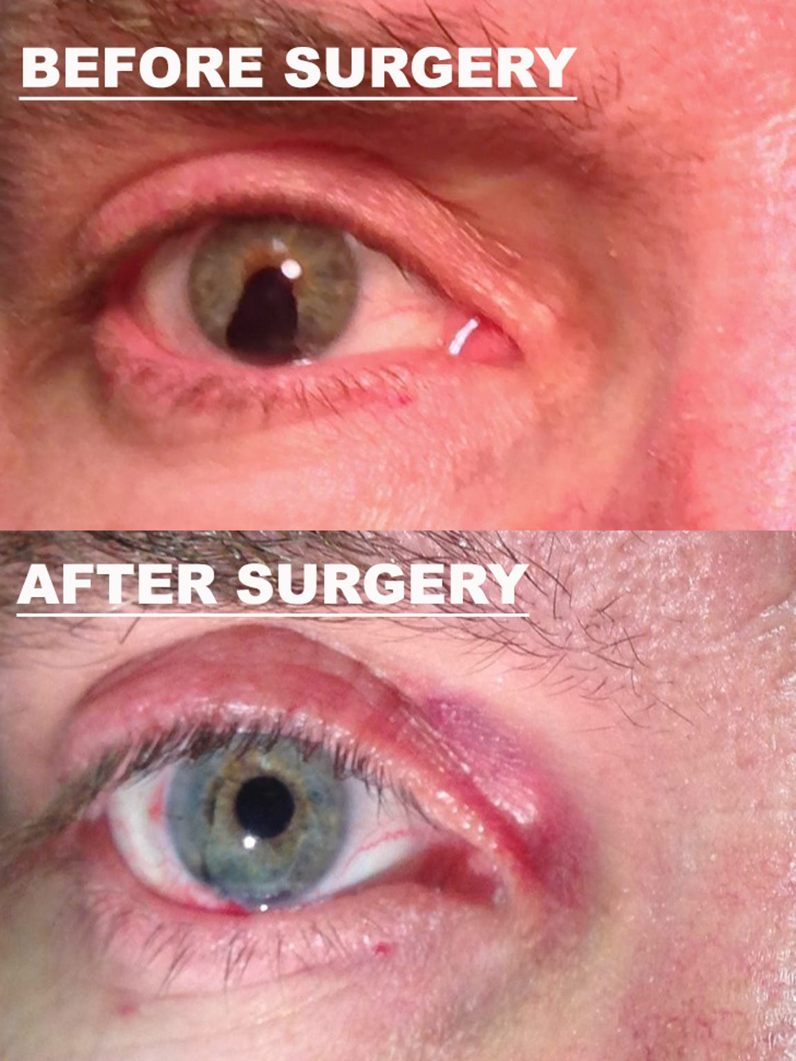 Dane Norem's right eye is shown before and after his artificial iris is implanted in July, 2015.