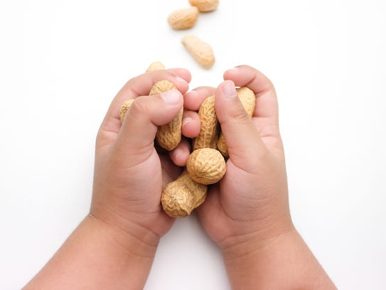 Some allergies can be accommodated by altering recipes or limiting snacks among family members. But life-threatening allergies mean an ingredient may need to be banned from the home.