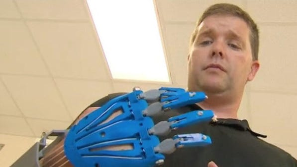 Man gets new hand