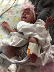 Aria Blake of Visalia, who weighs only 6 pounds at