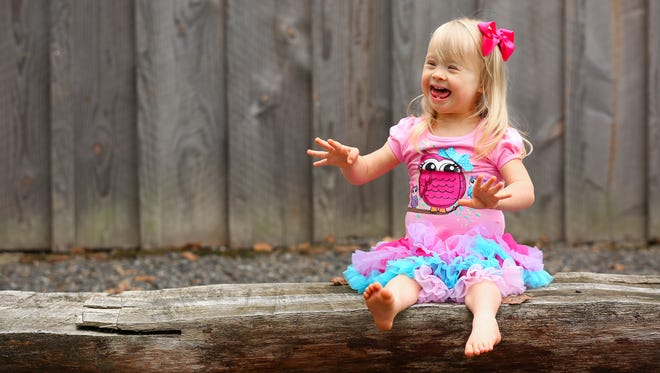 Ellie Stafford, 2, at their home, Friday, October 16, 2015, in Aurora, Ore. Stafford, who has Down syndrome, is redefining beauty by modeling and acting.