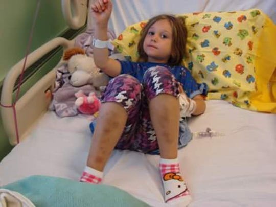 Layla Sands, 10, of Charlotte has been fighting a rare form of aplastic anemia for five years. She bruises easily and needs a bone marrow transplant to survive.