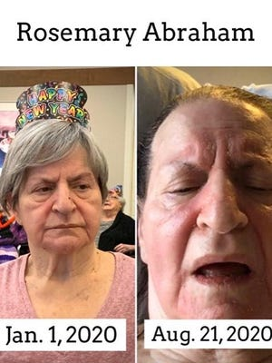 A pair of photos showing Rosemary Abraham over the span of seven months in a nursing home. Her daughter, Karla Abraham-Conley, acknowledged some of the changes were a result of her mother's dementia, but Conley said she became increasingly frustrated with not being able to visit her mother to provide additional care. Conley, started a Facebook group to advocate for families to visit and care for their loved ones in residential care facilities.