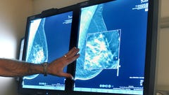Study sparks debate on treatment for early stage breast cancer