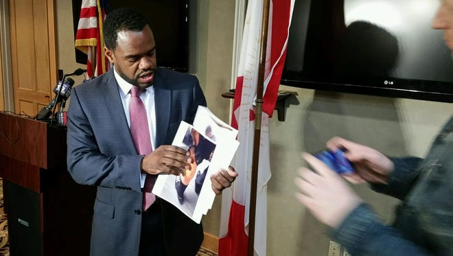 Birmingham City Council President Johnathan Austin holds up a photograph of injuries to Councilman Marcus Lundy's leg after a fight with Mayor William Bell, as he speaks during a press conference Tuesday, Dec. 15, 2015, in Birmingham, Ala. Bell and Lundy each suffered minor injuries in a fight that broke out during a council meeting Tuesday, and both men could face charges.