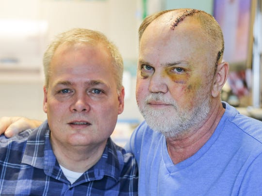 Acapulco Joe's Owner Grant Redmond, right, is up and moving with his partner Bob Plank, as he slowly recovers at Eskenazi Hospital in Indianapolis after Redmond was brutally beaten by a customer who attempted to dine and dash, on Tuesday, March 20, 2018. Maurice Marcel Dunlap has been arrested and charged in connection with the beating which took place March 13, 2018.