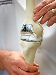 Dr. Todd Midla shows a model of a knee replacement