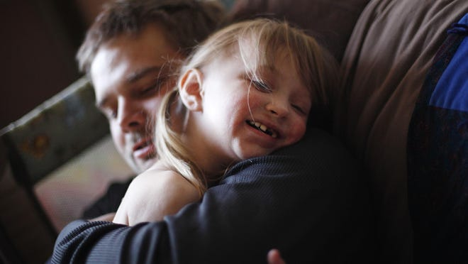 Justin Hathaway hugs his daughter Ella, who suffers from Goltz syndrome, a rare illness that requires frequent care from medical specialists, at their home in Tonopah on Nov. 4.