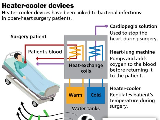 Heater-coolers, which are used to regulate a patient's