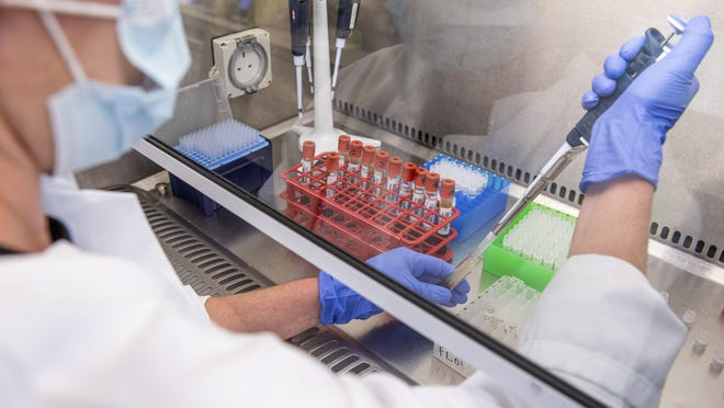 In this contributed photo released by the University of Oxford, samples from coronavirus vaccine trials are handled inside the Oxford Vaccine Group laboratory in Oxford, England on June 25.