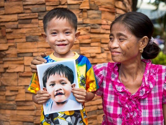 A boy in the Philippines smiles after his facial surgery