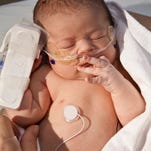 A congenital heart defect (CHD) - the most common birth defect - occurs when the heart or blood vessels near the heart do not develop normally before birth. The American Heart Association reports that nine of every 1,000 babies born in the United States have CHDs.