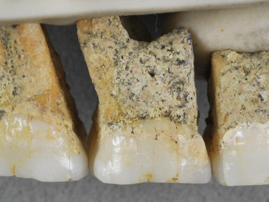 This undated photo shows the right upper teeth of the individual CCH6 of the newly discovered species Homo luzonensis. From left are two premolars and 3 molars. In a study released on Thursday, April 10, 2019, scientists report that tests on two samples from the species show minimum ages of 50,000 years and 67,000 years.