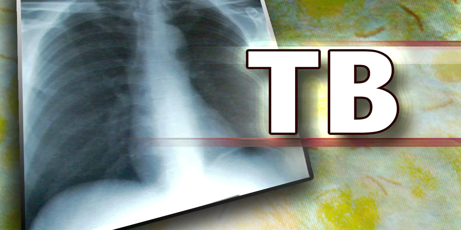 Tuberculosis outbreak investigated at homeless shelters