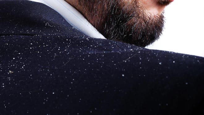 Dandruff can be an embarrassing condition, but can usually be controlled. (Dreamstime)
