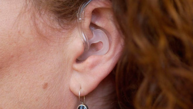 This clear plastic hearing aid, for those with moderate to severe hearing loss, has electronics that are housed in a case that fits behind the ear.