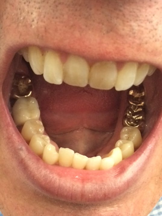 Answer Man: Can gold teeth be pulled before cremation?