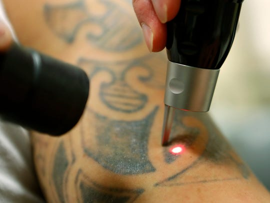 Joel Hern, of Cincinnati, receives a tattoo removal