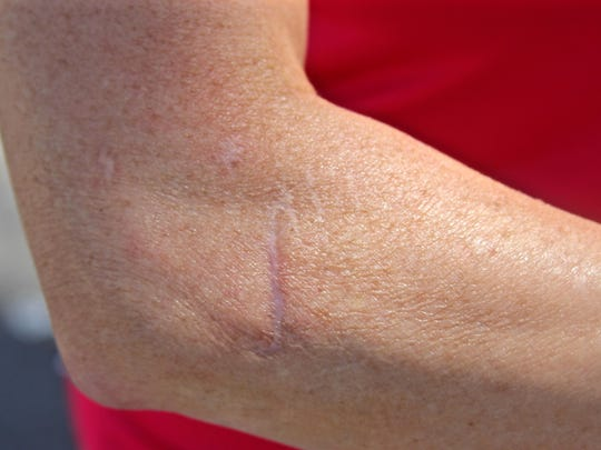 A scar from the attack marks Swarthout's right arm. Although physical wounds have healed, emotional injuries still remain.