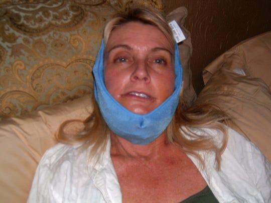 Susan Rhodes suffered a broken jaw when she was struck