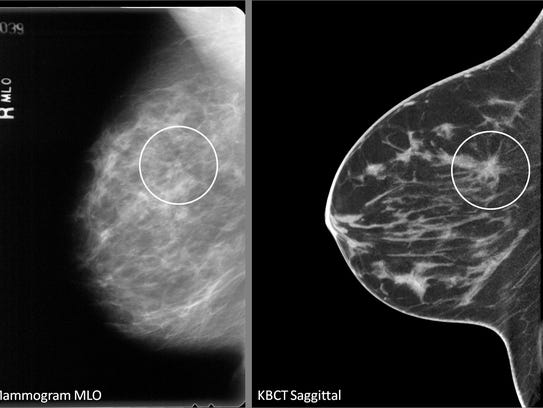 The area of a tumor is circled on two views of a breast.