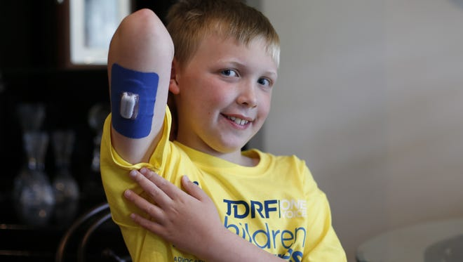 Crew Carlile, 9, shows off the glucose monitoring device he wears at all times.