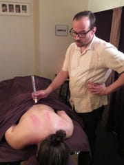 Marc Luchs demonstrates moxibustion on his fiance,
