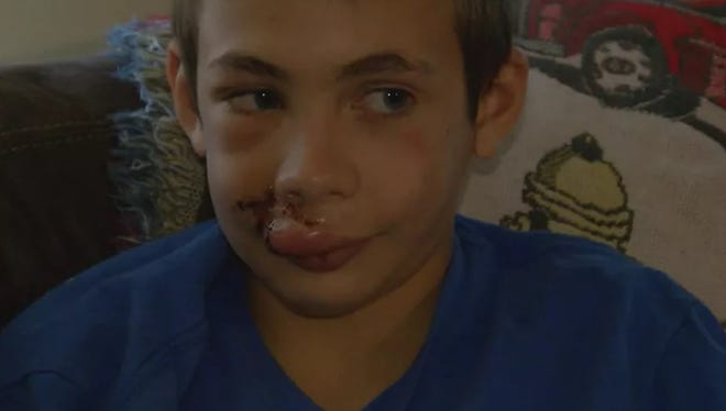 Cooper Benjamin, 12, is recovering after receiving more than 200 stitches to treat injuries from a pitbull attack in Georgetown, Ohio.