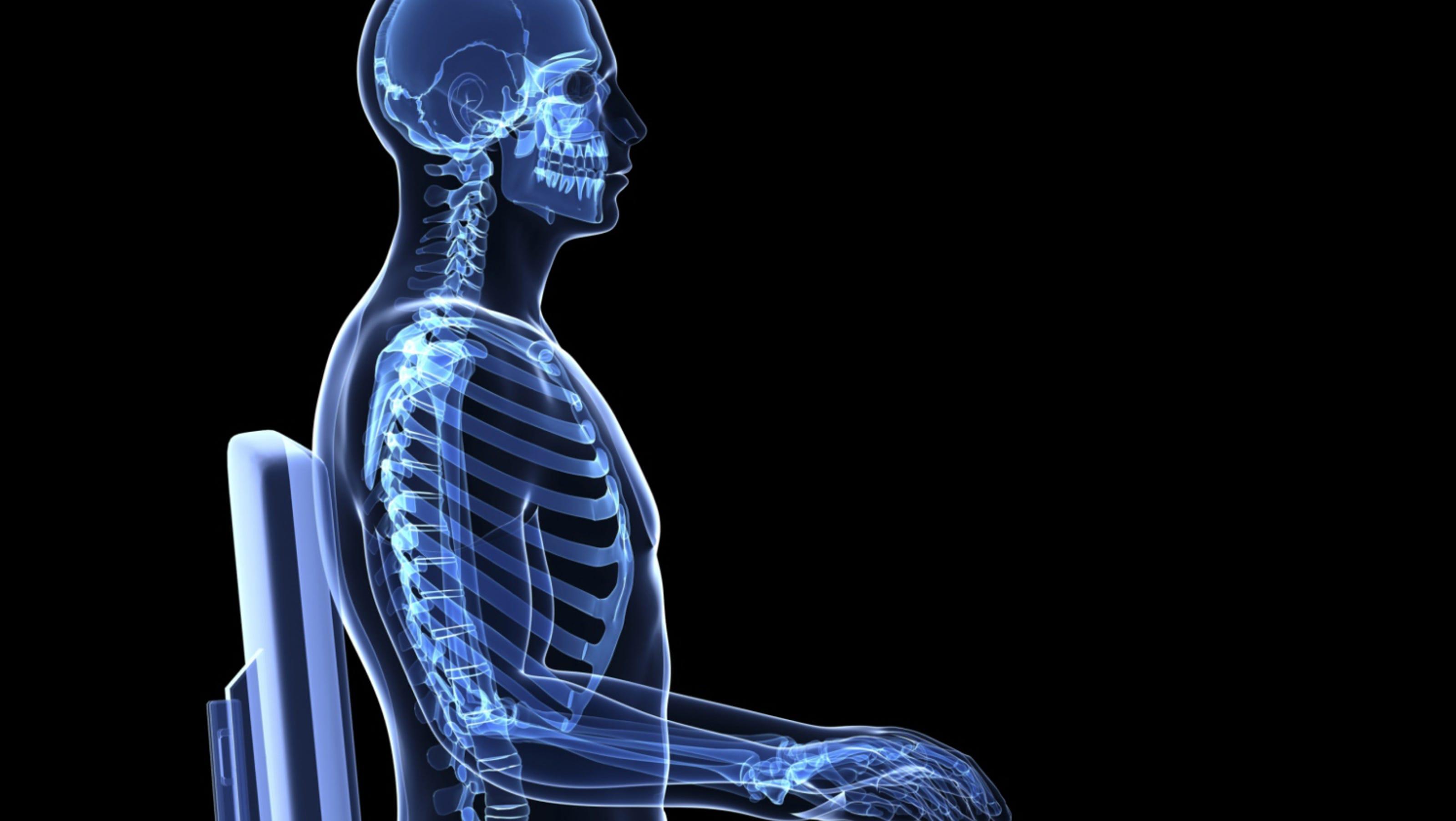 Skeletal Posture Pictures 52