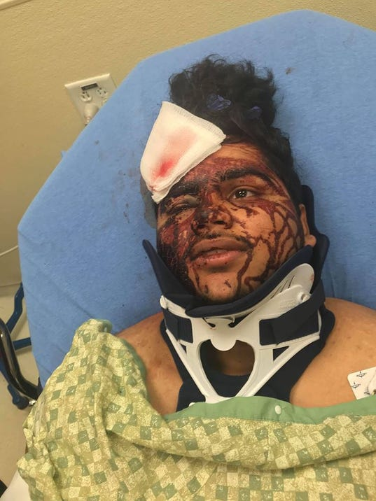 texas teen beaten with jack handle after offering help to. Black Bedroom Furniture Sets. Home Design Ideas