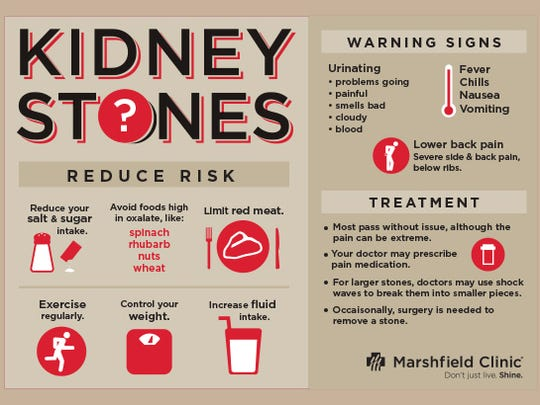 Kindey Stones information