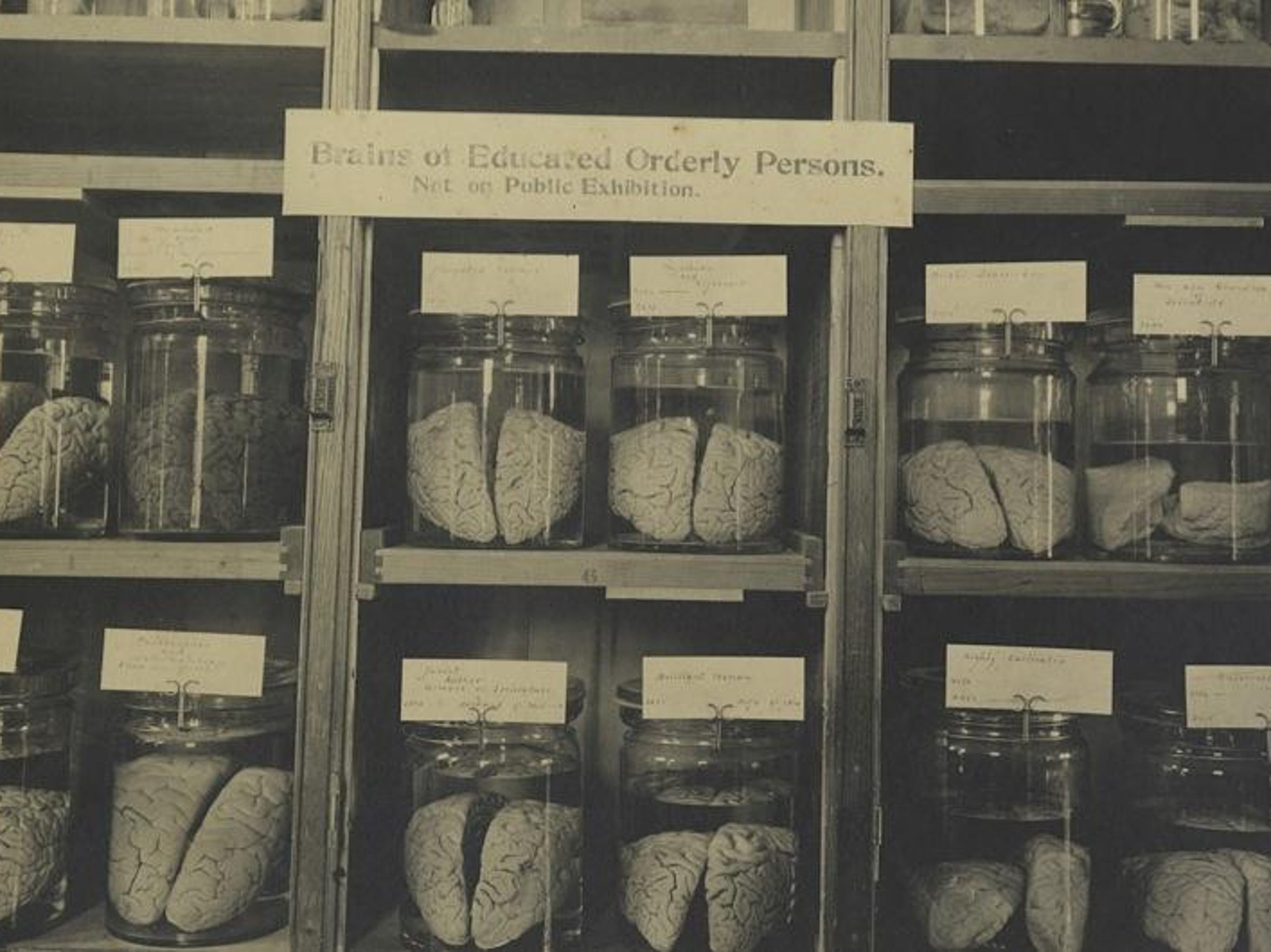 At one point, a Cornell collection held 600 brains,