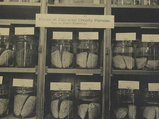 At one point, a Cornell collection held 600 brains, maybe up to 1,200.