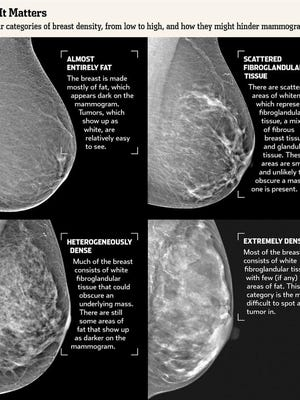 This image, courtesy of the University of Vermont Medical Center, illustrates four types of breast density. A new law in Vermont will require notification of patients who have dense breasts, which can make cancer detection more difficult.