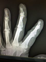 A X-ray of Dr. Jan Lee's fingers days after she cut