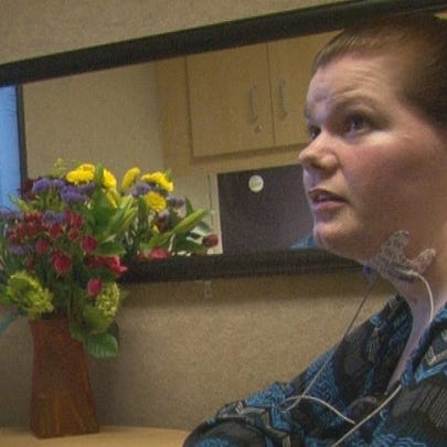 A Jacksonville woman who lost her ability to swallow